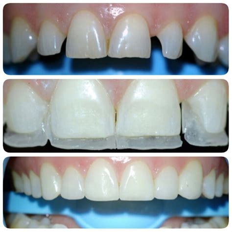 composite bonding tracey bell dental clinics liverpool and the isle of