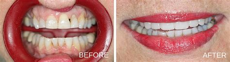 tooth extraction cost atlanta dental clinic smile gallery gentle smiles dental