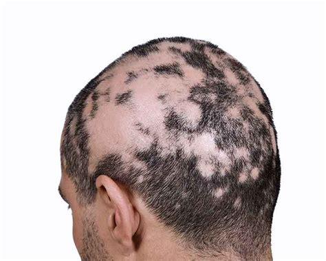 invisible part for bald spots alopecia areata treatment symptoms risk factors