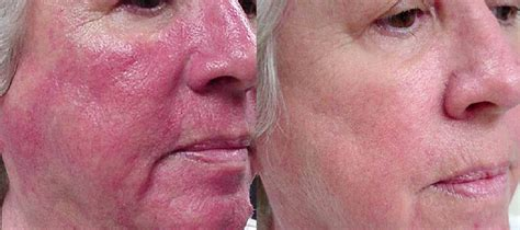 how to cure a red swollen nose rosacea support group rosacea laser treatment in surrey rhinophyma vascular