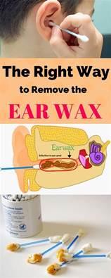 best 25 ear wax ideas on ear wax