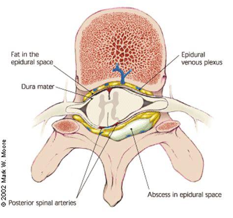 spinal epidural abscess: a diagnostic challenge