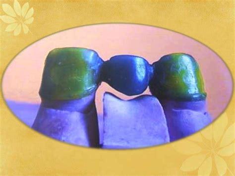 pattern making wax dental waxes dental materials ppt