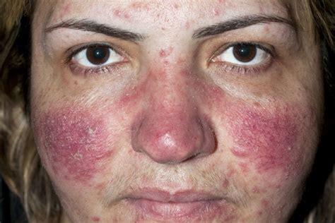 rosacea alimentazione acne rosacea