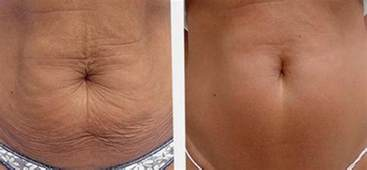 cellulite vorher nachher alidya anti cellulite in berlin dr kb de