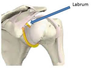 Cardiff caerphilly chiropractors shoulder pain series labral tear