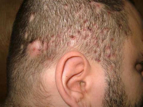 follicolite testa follicolite cuoio capelluto cause sintomi il