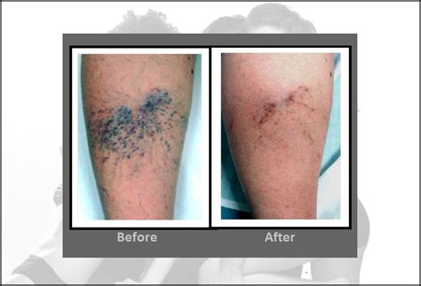 laser vein removal treatments for spider veins hartford ct