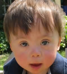 Down syndrome program your visit boston children s hospital