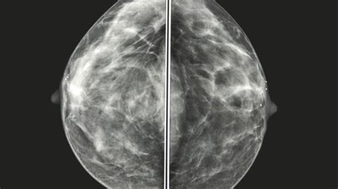 mammogram images mammogram images understanding your results