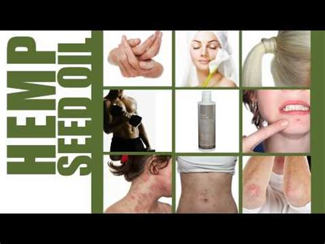 all comments on hemp cures fibroids hemp cures fibroids how to save money and do it