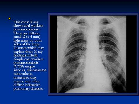 imaging in silicosis and coal worker pneumoconiosis in the name of god ppt video online download