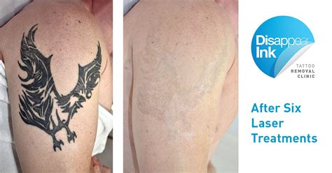 full body tattoo removal angry bird 6th treatment disappear ink removal