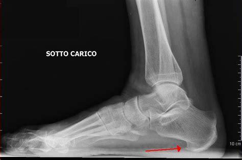 dolore alla caviglia lato interno dolore al piede lato esterno o interno al tallone cause