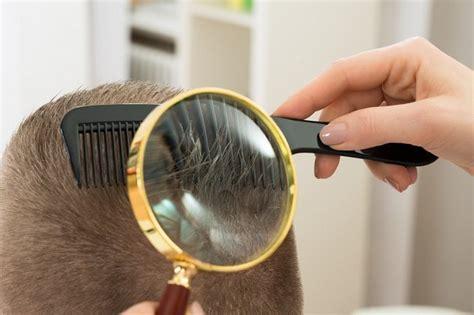 kutu rambut manusia gejala dan cara mudah mengatasinya