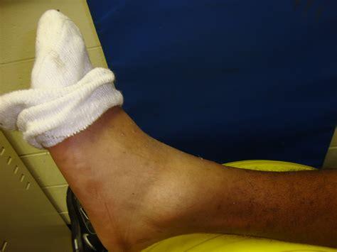leg sprain ankle sprain cures page 105