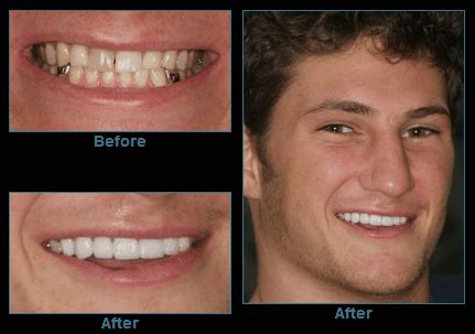 How Do You Fix A Chip In A Bathtub by Bend Dentist Fix Chipped Tooth