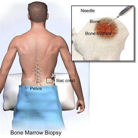 Resuming After Biopsy Bad To The Bone Bone Marrow Biopsy Cia