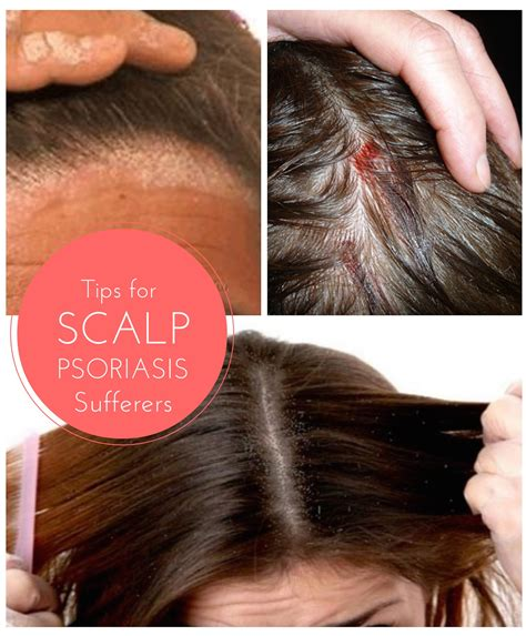 best hair for psoriasis tips for finding effective relief from the symptoms of
