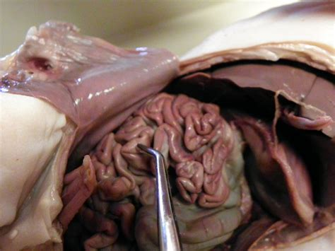 what is the first section of the large intestine small intestine dissection of a fetal pig