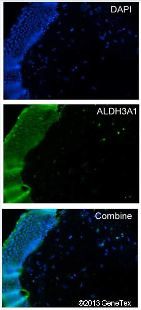antigen retrieval frozen sections anti aldh3a1 antibody n1c2 genetex
