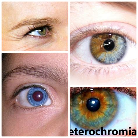 different color heterochromia iridum with two different colored