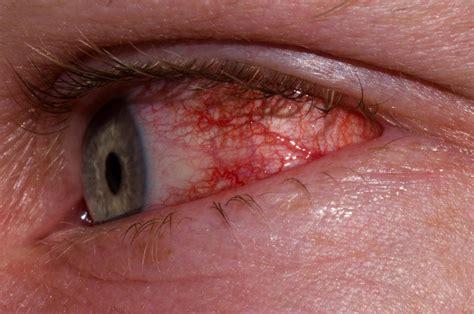 pink eye conjunctivitis meddic