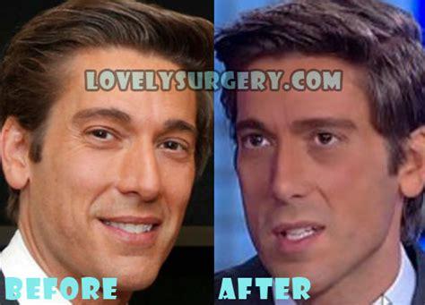 david muir shirtless plastic surgery and pictures this david muir plastic surgery before and after photo lovely surgery before and after