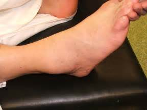 Figure 1 soft tissue swelling of the right lateral ankle