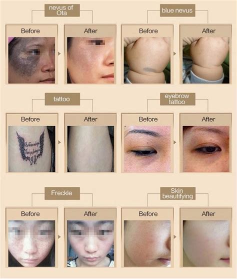 yag laser tattoo removal before and after top selling piment removal eo q switch nd yag laser