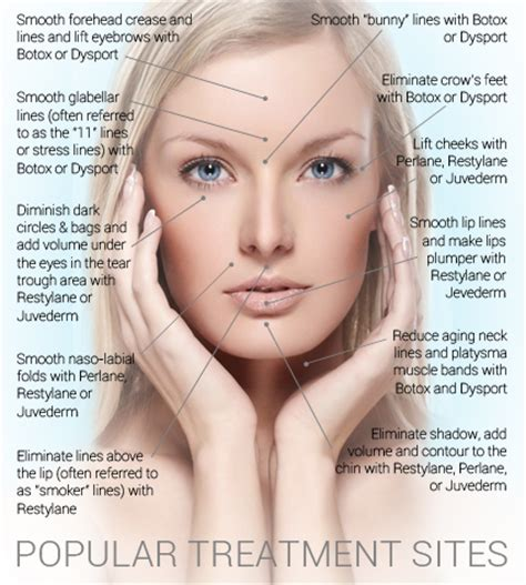 botox injection for migraines diagram collagen archives anushka spa salon cosmedical centre