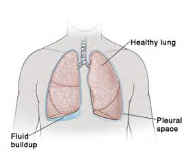 fluid in lungs after c section image gallery lung pleura