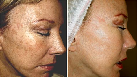 pigmentation treatments in plymouth and exeter