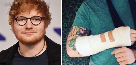 ed sheeran arm get well soon ed ed sheeran s been hit by a car while