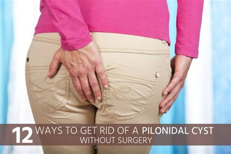 the 25 best pilonidal cyst ideas on