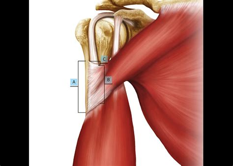 biceps tenodesis recovery table biceps tenodesis ideal vistalist co