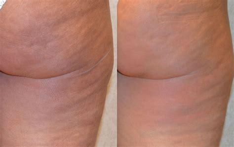 Cellulite Treatment Body Fx Cellulite Treatment Body Fx