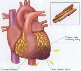 During a heart attack the flow of blood to the heart is blocked by