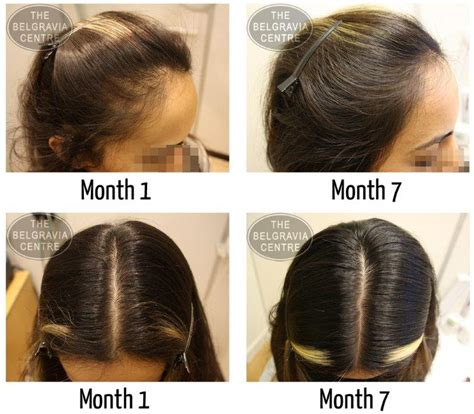 i have female pattern hair loss women s hair loss treatment success stories
