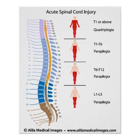 spinal cord injury diagram spinal cord injury levels labeled diagram poster zazzle