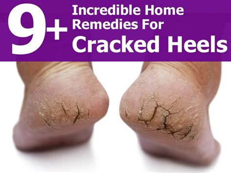 9 home remedies for cracked heels skin care