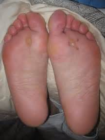 treatment for corneal ulcer remove wart on toe arch
