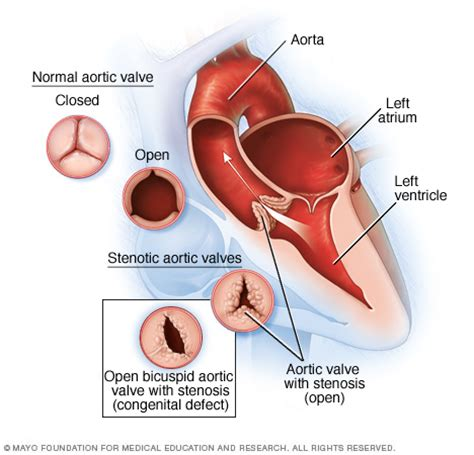 mayoclinic.com health library aortic valve stenosis