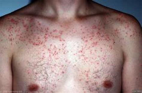 folliculitis treatment folliculitis sexinfo