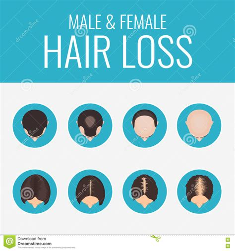 male pattern baldness numbers stages cartoons illustrations vector stock images
