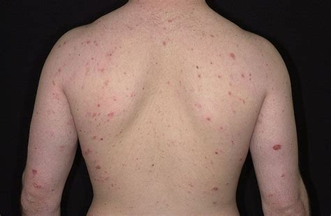 Detox Rash On Back by 747 Best Images About All About Eczema On Surf