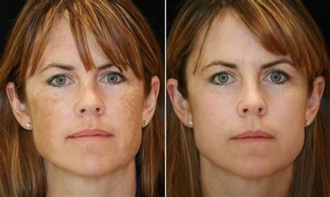 laser freckle removal uk picosure fla amp revlite andrea