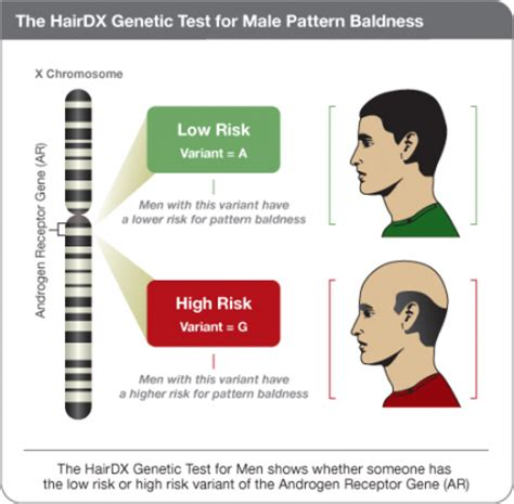 Male Pattern Baldness Test | knowing and treating srd5a2 5 alpha reductase type 2