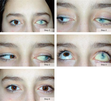 newborn eye color before and after prosthetic eye surgery