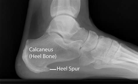 Planters Spur by Plantar Fasciitis And Bone Spurs Orthoinfo Aaos